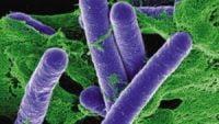 Vi khuẩn Clostridium botulinum là gì? Nó nguy hiểm và độc hại như thế nào?