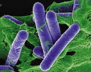 vi khuan Clostridium botulinum la gi